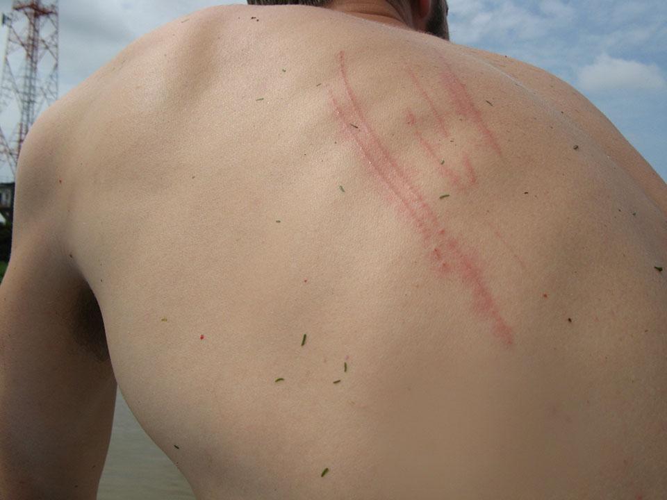 Rasguños en el cuerpo en el barco a Siem Reap, Camboya.
