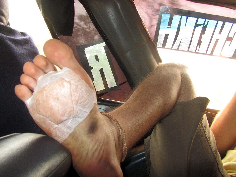 Herida de guerra despues del partido en Kédougou, Senegal